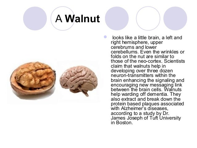 Foods Associated With Alzheimer S