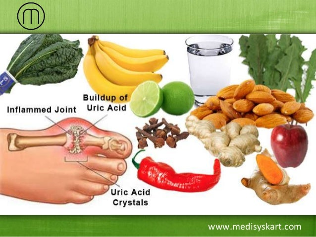Food And Beverages High In Uric Acid