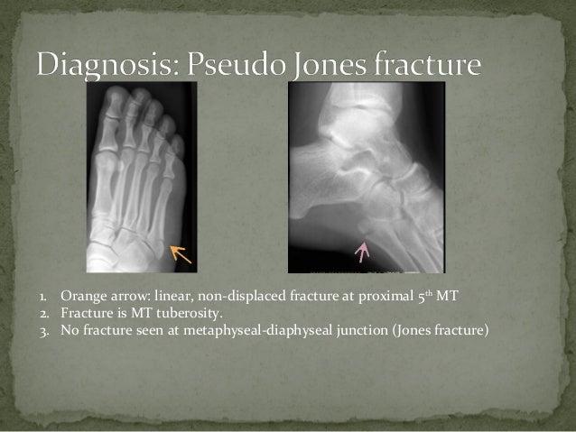 pseudo jones fracture