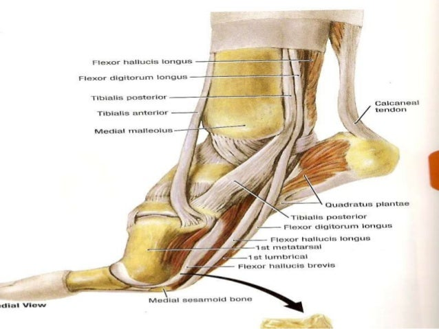Foot arch deformities 2