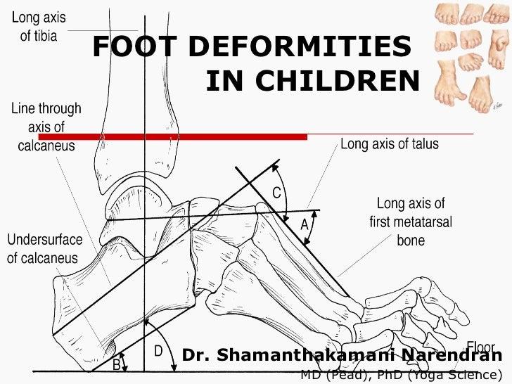 FOOT DEFORMITIES  IN CHILDREN Dr. Shamanthakamani Narendran  MD (Pead), PhD (Yoga Science)