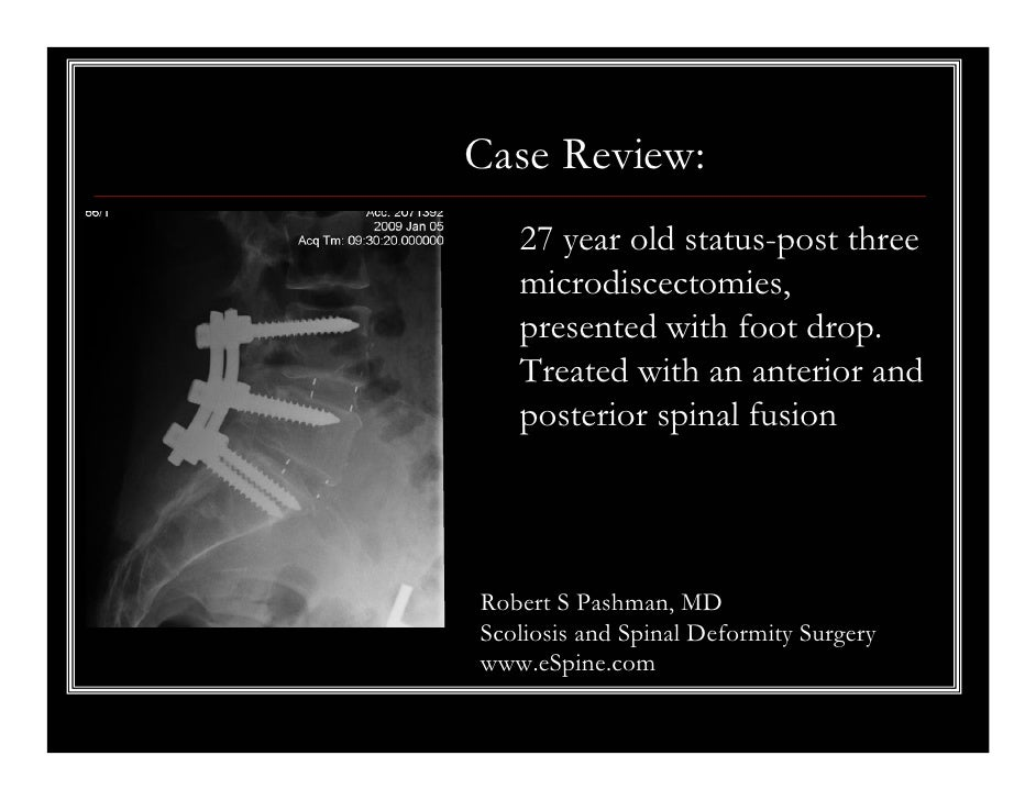 Case Review:   27 year old status-post three   microdiscectomies,   presented with foot drop.   Treated with an anterior a...