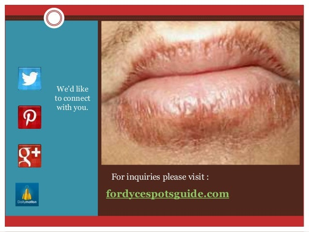 How to get rid of papules on penile shaft