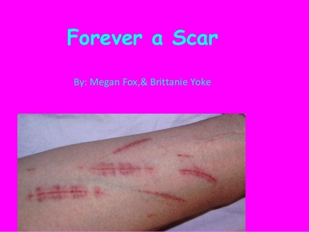 Forever a Scar By: Megan Fox,& Brittanie Yoke