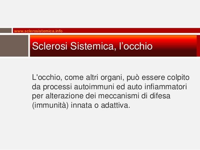 www.sclerosistemica.info  Sclerosi Sistemica, l'occhio L'occhio, come altri organi, può essere colpito da processi autoimm...