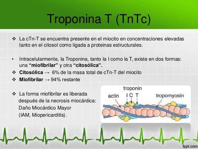TROPONINA T ULTRASENSIBLE EPUB