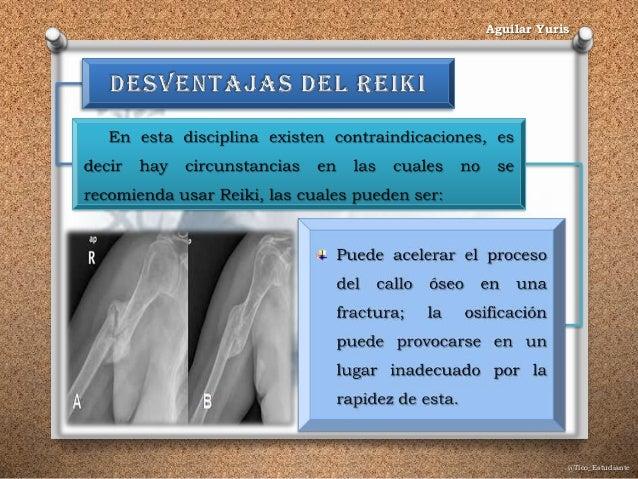 @Tico_Estudiante Aguilar Yuris