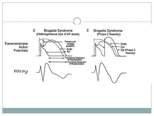 Brugada ECG pattern: a physiopathological prospective ...