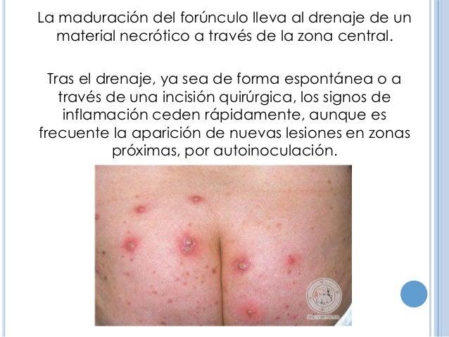 Forunculosis