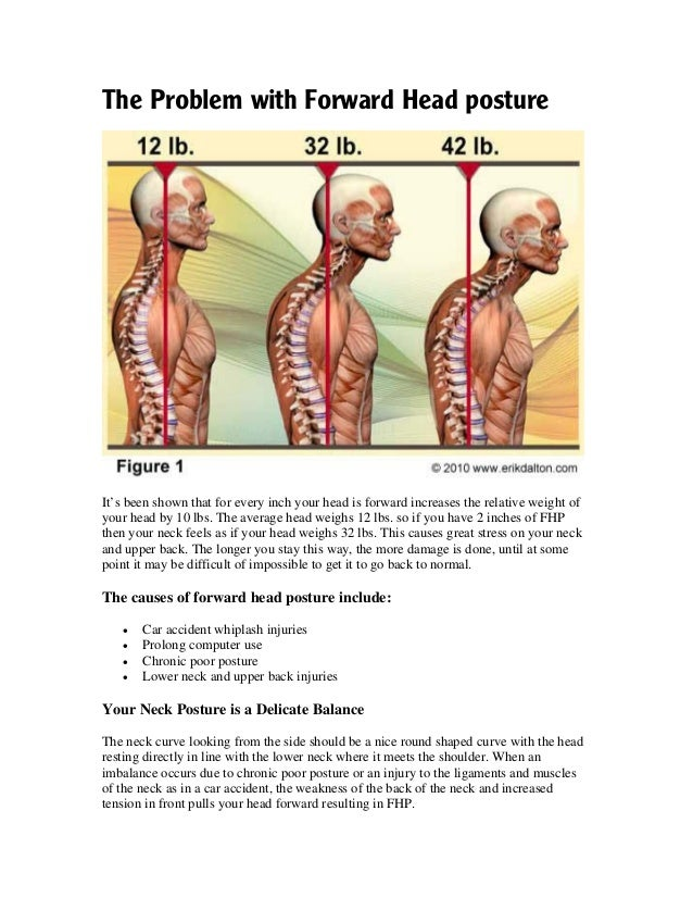 Forward Head Posture Fhp Correction