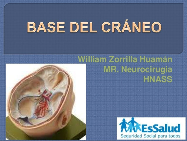 William Zorrilla Huamán MR. Neurocirugia HNASS