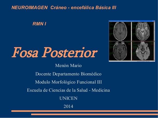 NEUROIMAGEN Cráneo - encefálica Básica III  RMN I  Fosa Posterior  Menón Mario  Docente Departamento Biomédico  Modulo Mor...