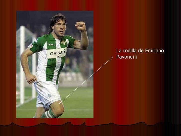 La rodilla de Emiliano Pavone¡¡¡