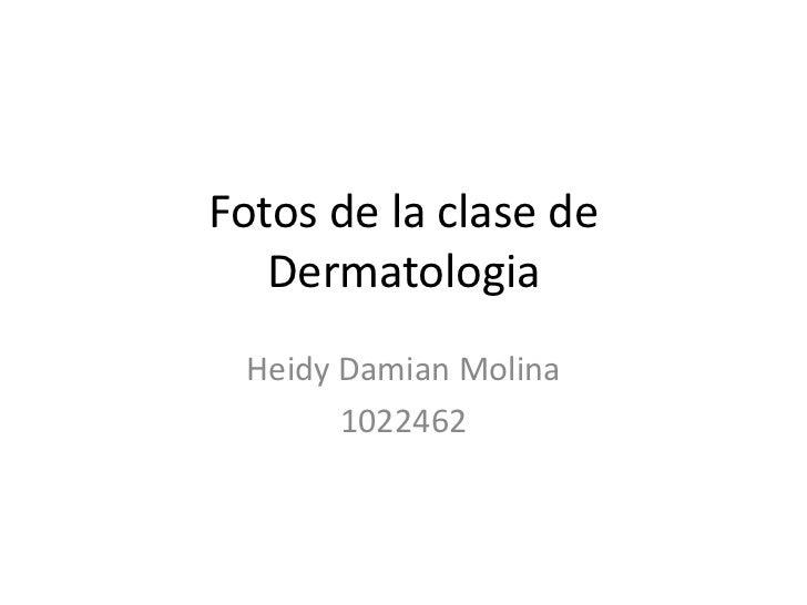 Fotos de la clase de   Dermatologia Heidy Damian Molina       1022462