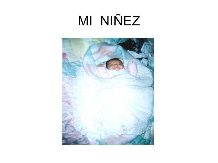 MI NIÑEZ