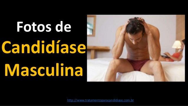 Fotos de Candidíase Masculina http://www.tratamentoparacandidiase.com.br