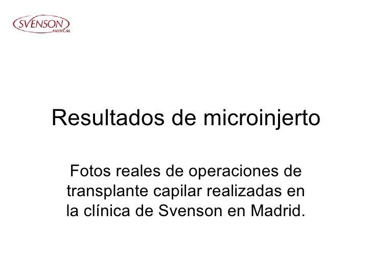 Resultados de microinjerto Fotos reales de operaciones de transplante capilar realizadas en la clínica de Svenson en Madrid.