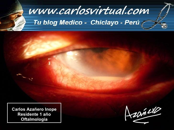 Carlos Azañero Inope Residente 1 año Oftalmología