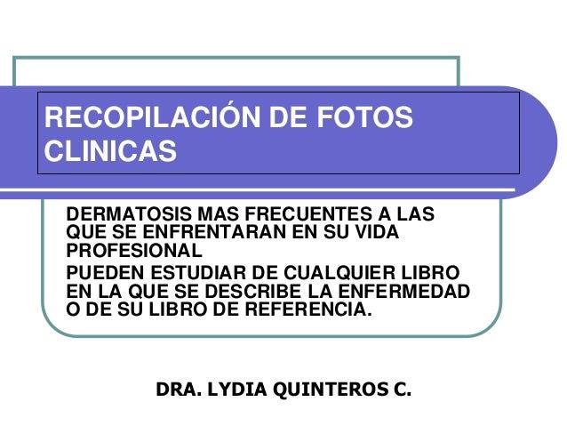 RECOPILACIÓN DE FOTOS CLINICAS DERMATOSIS MAS FRECUENTES A LAS QUE SE ENFRENTARAN EN SU VIDA PROFESIONAL PUEDEN ESTUDIAR D...