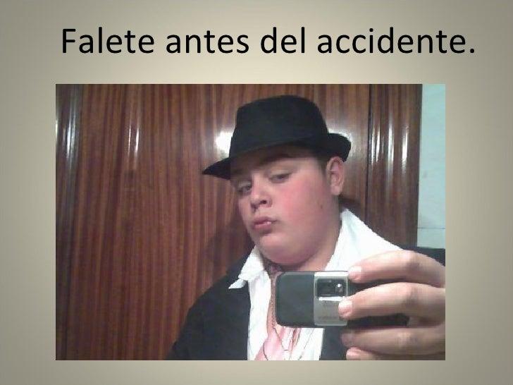 <ul><li>Falete antes del accidente. </li></ul>