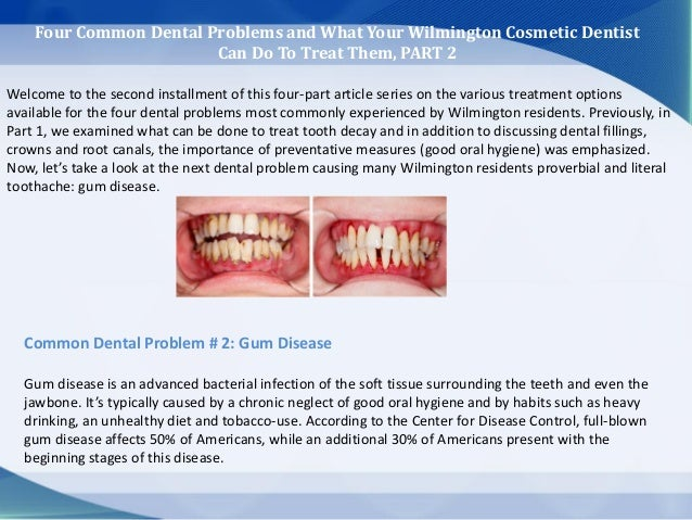 Four Common Dental Problems and What Your Wilmington Cosmetic Dentist Can Do To Treat Them, PART 2 Welcome to the second i...