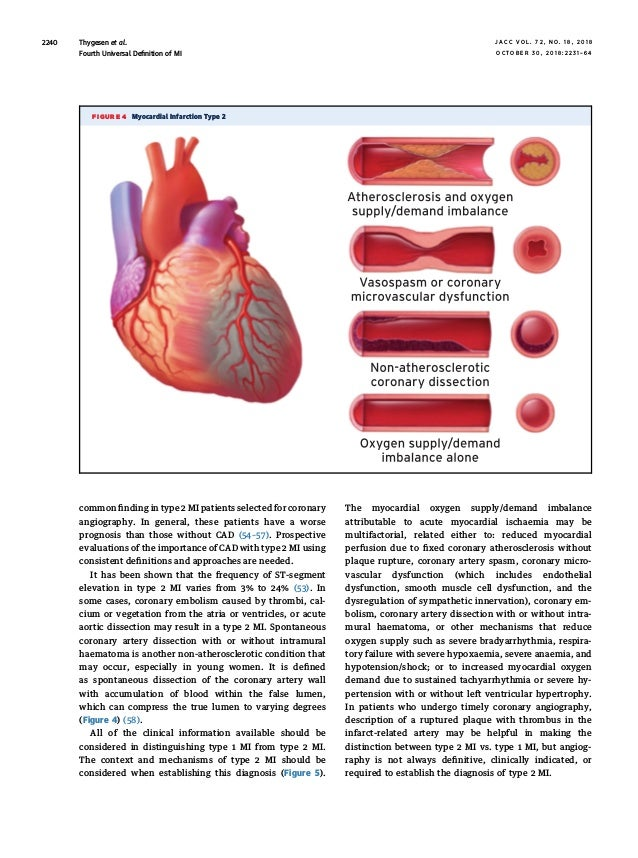 Fourth Universal Definition Of Myocardial Infarction 2018