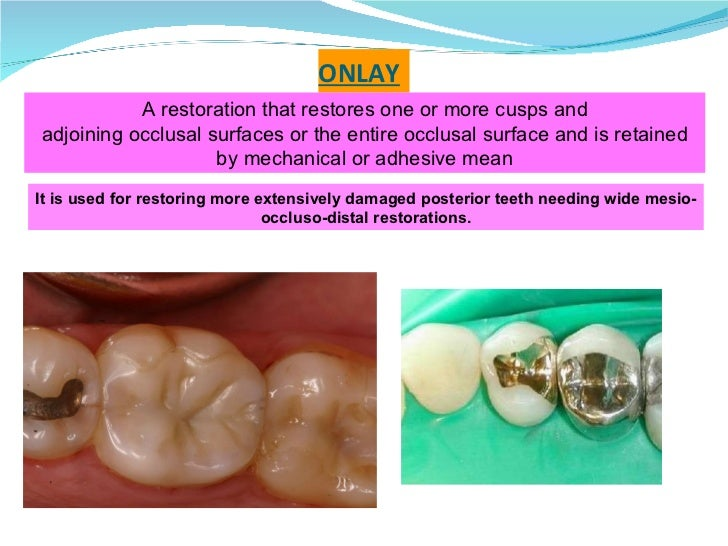 ONLAY A restoration that restores one or more cusps and adjoining occlusal surfaces or the entire occlusal surface and is ...