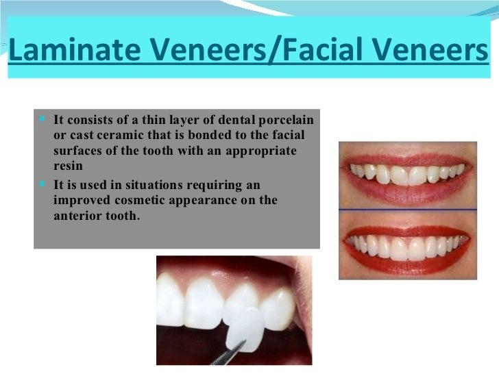 Laminate Veneers/Facial Veneers <ul><li>It consists of a thin layer of dental porcelain or cast ceramic that is bonded to ...