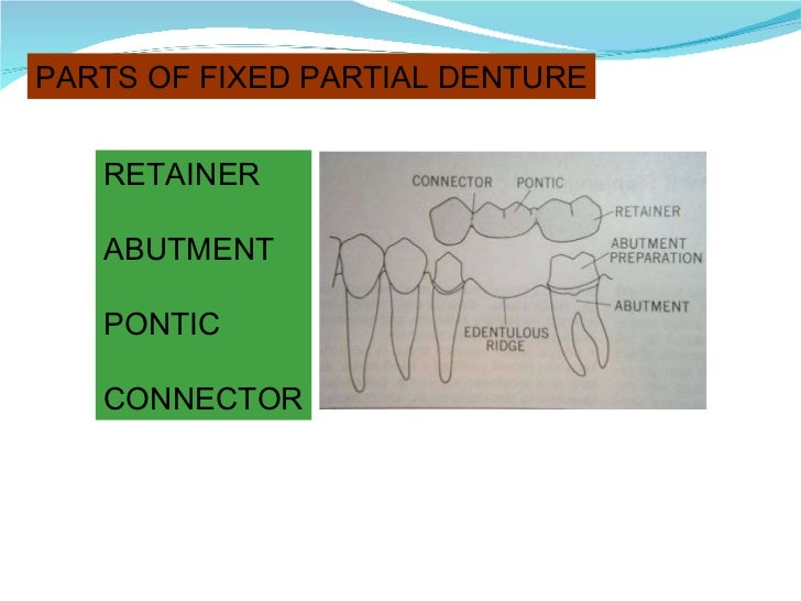 PARTS OF FIXED PARTIAL DENTURE RETAINER ABUTMENT PONTIC CONNECTOR