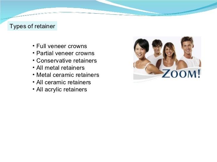 Types of retainer <ul><li>Full veneer crowns </li></ul><ul><li>Partial veneer crowns </li></ul><ul><li>Conservative retain...