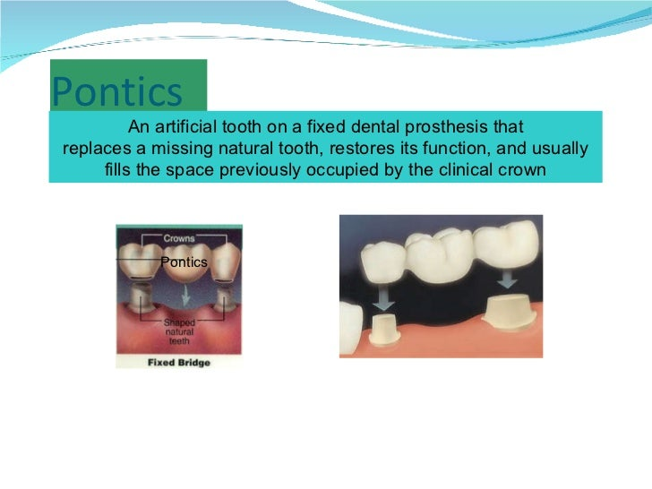 Pontics An artificial tooth on a fixed dental prosthesis that replaces a missing natural tooth, restores its function, and...
