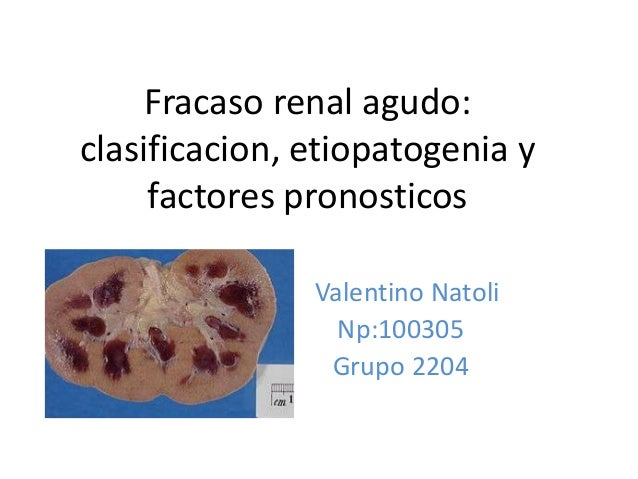 Fracaso renal agudo:clasificacion, etiopatogenia y     factores pronosticos               Valentino Natoli                ...