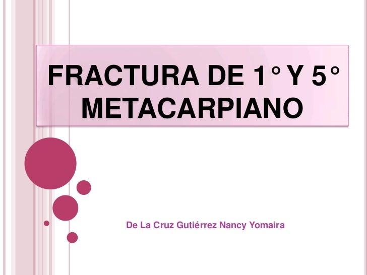 FRACTURA DE 1° Y 5°  METACARPIANO     De La Cruz Gutiérrez Nancy Yomaira