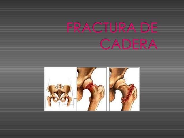 FRACTURA DE CADERA CONCEPTO Solucion de continuidad en el tejido oseo a nivel del extremo proximal del femur. Ocurre casi ...