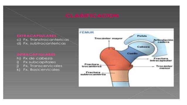 Fractura  de cadera Slide 3