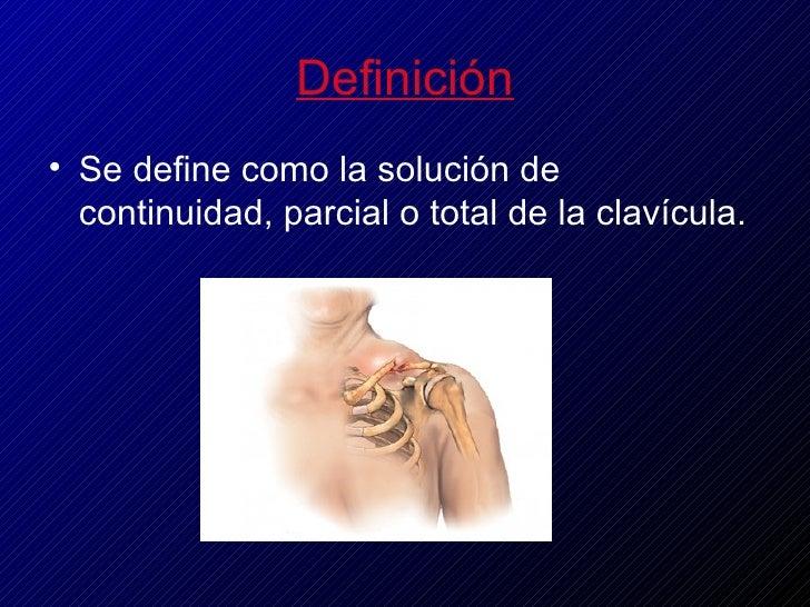 Fractura de clavícula Slide 3