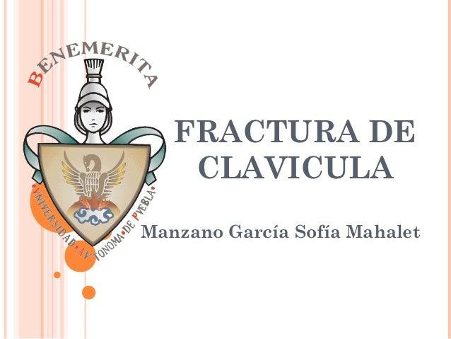 FRACTURA DE    CLAVICULAManzano García Sofía Mahalet