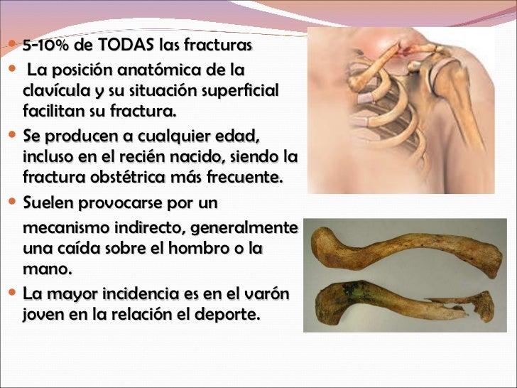 Fractura De Clavicula Y Escapula Por Adriana Moncayo 5372fc8a7e23