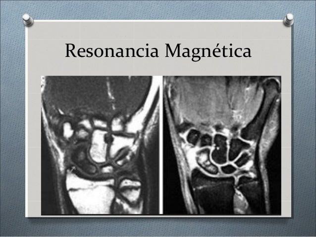 Tratamiento O Es complejo y variado O No hay tratamiento estandarizado O Se recuperara la anatomía del complejo dañado