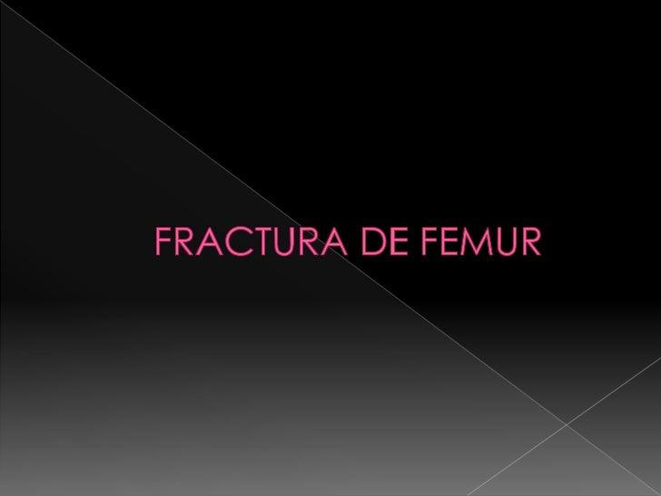  Fractura de fémur Causas Síntomas Diagnostico Tratamiento Referencia