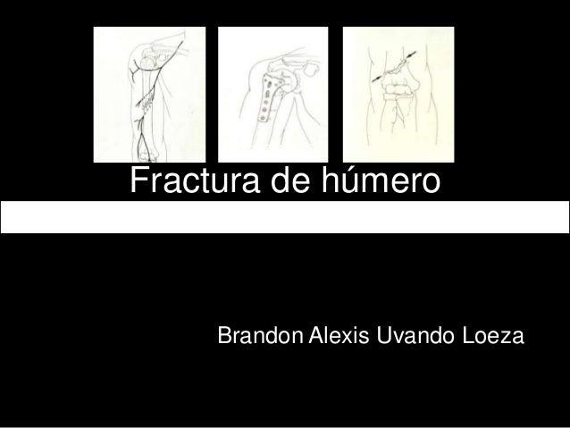 Fractura de húmero Brandon Alexis Uvando Loeza
