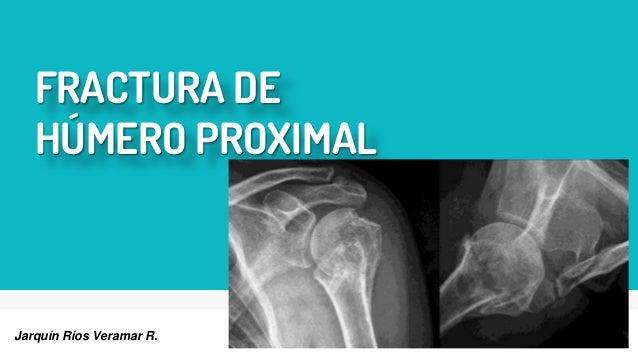 FRACTURA DE HÚMERO PROXIMAL Jarquín Ríos Veramar R.