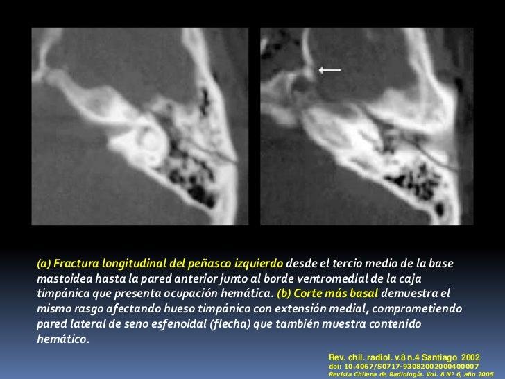 Fractura del peñasco Dr gabriel hinojosa