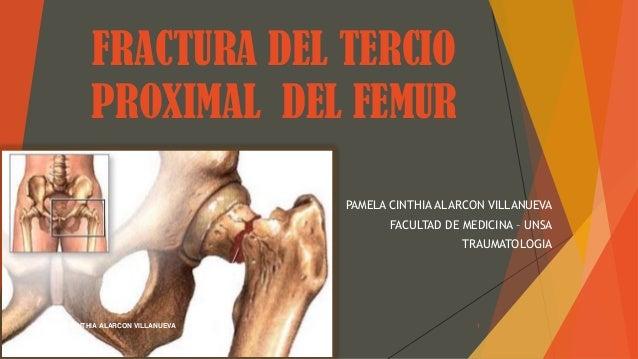 FRACTURA DEL TERCIO PROXIMAL DEL FEMUR PAMELA CINTHIA ALARCON VILLANUEVA FACULTAD DE MEDICINA – UNSA TRAUMATOLOGIA PAMELA ...