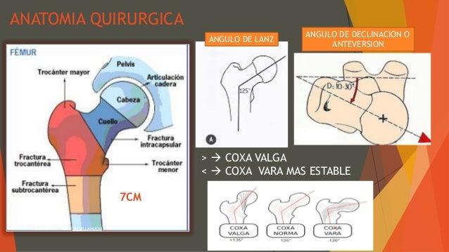 Fractura del tercio proximal del femur