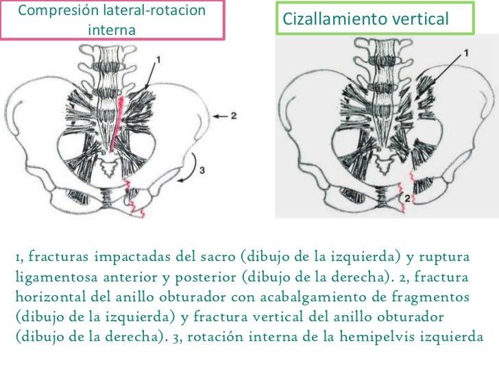 Fractura de pelvis y acetábulo