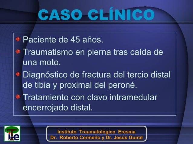 CASO CLÍNICO Paciente de 45 años. Traumatismo en pierna tras caída de una moto. Diagnóstico de fractura del tercio distal ...