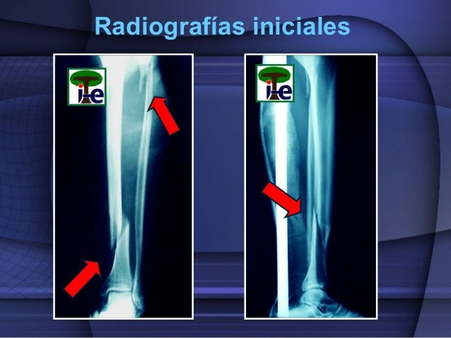 Radiografías iniciales