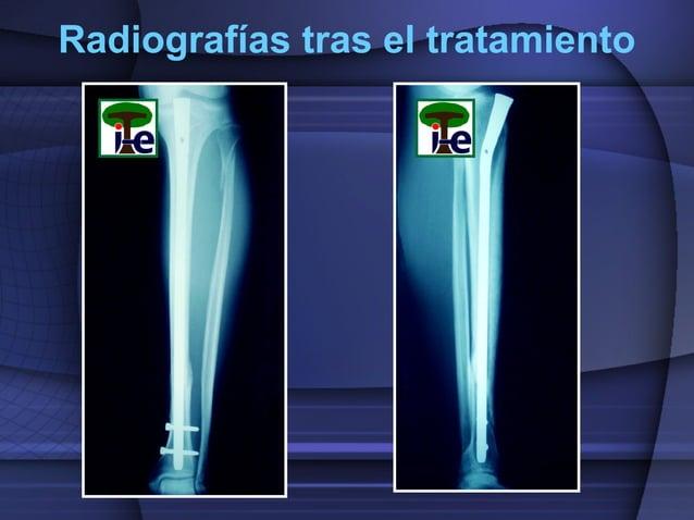 Radiografías tras el tratamiento