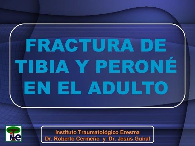 FRACTURA DE TIBIA Y PERONÉ EN EL ADULTO Instituto Traumatológico Eresma Dr. Roberto Cermeño y Dr. Jesús Guiral